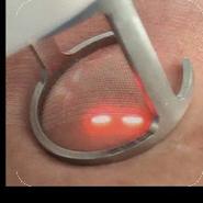 laser-co2-fraccionado-2