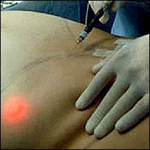 La nueva cirugía láser de Medilaser que sustituyo a laliposucción
