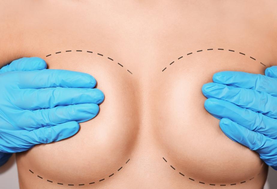 No todos los implantes son iguales | Tipos de implantesMedilaser