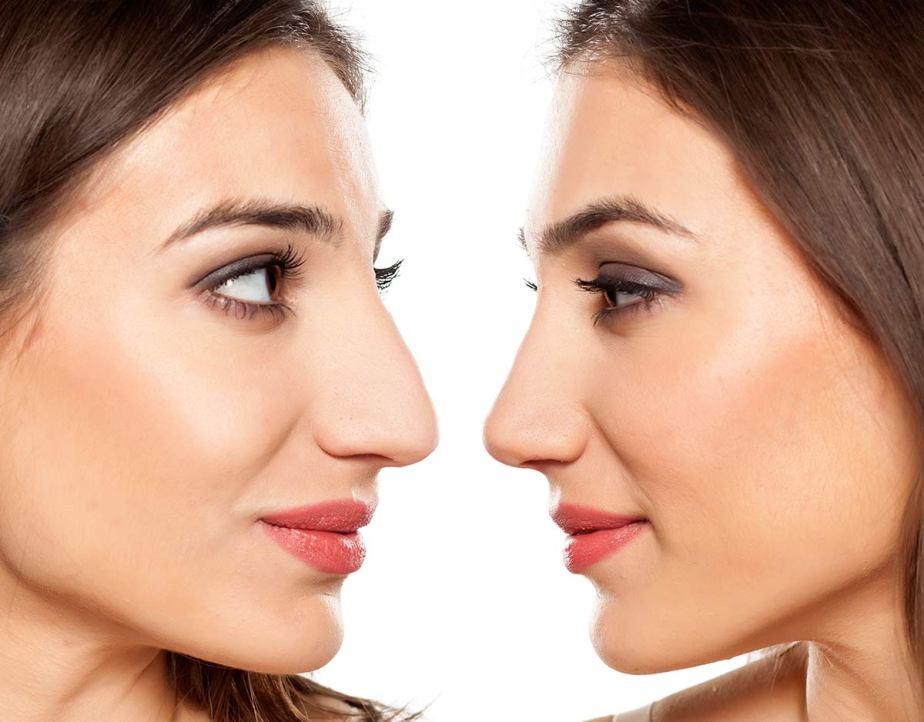 5 Mitos y verdades de unarinoplastía
