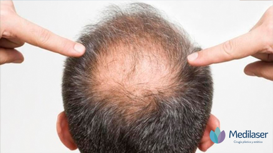 Razones por las cuales estás perdiendo cabellorápidamente